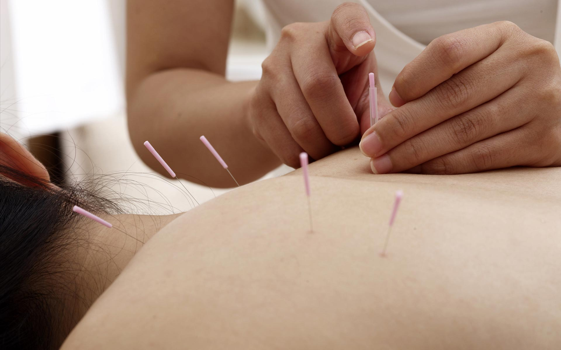 L'acupuncture : un art médical ancestral